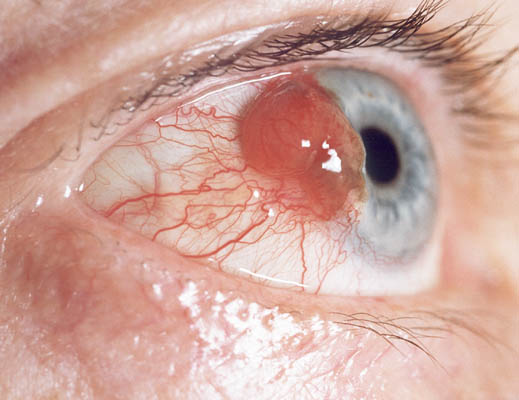 Melanoma in the eye